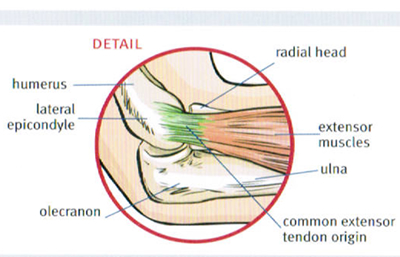 Tennis Elbow and prevention - Central City Physiotherapy