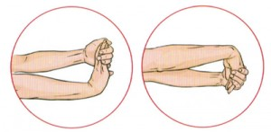 Tennis Elbow-exercise - Central City Physiotherapy